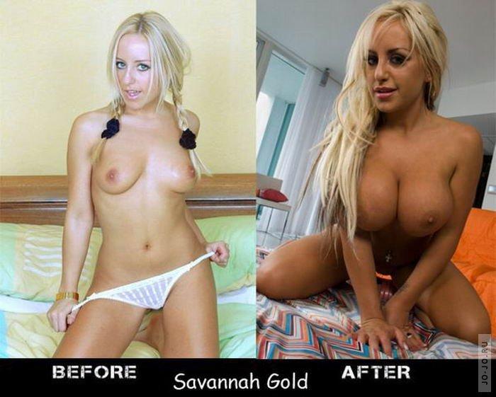 порно увеличение груди