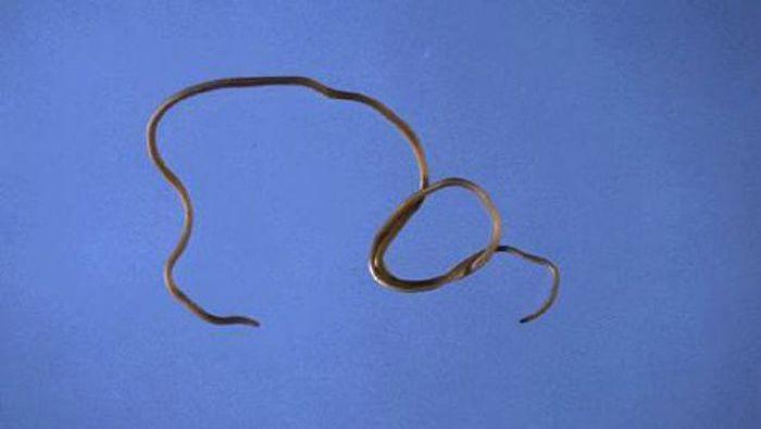 самые опасные черви для человека