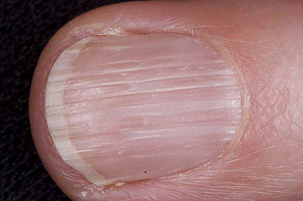 Продольные полосы на ногтях причины