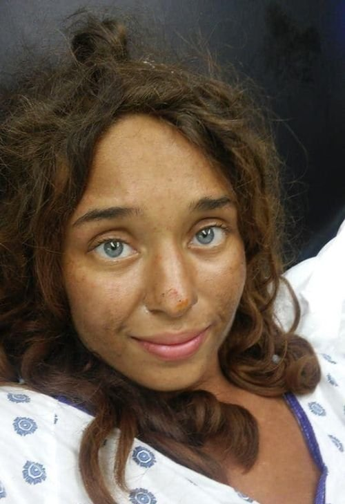 В США нашли заблудившуюся девушку, которая провела месяц в лесу (2 фото)