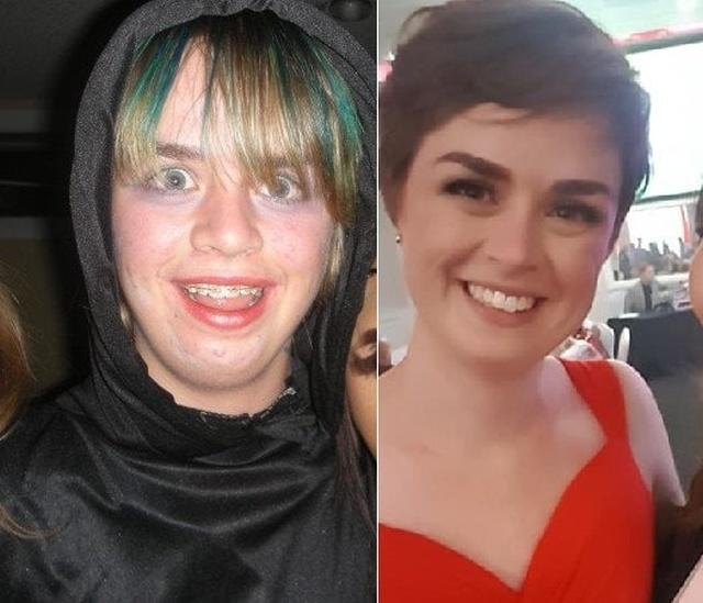 До и после: в подростковом возрасте и спустя несколько лет (17 фото)