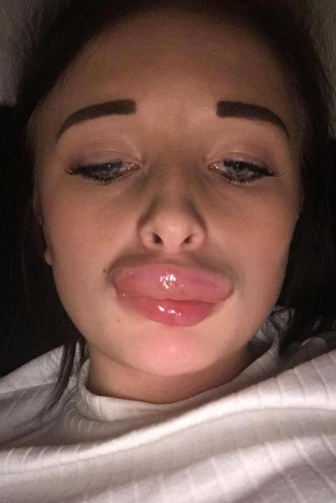 """Девушка всегда хотела """"пухленькие губки"""", но все пошло совсем не так (4 фото)"""