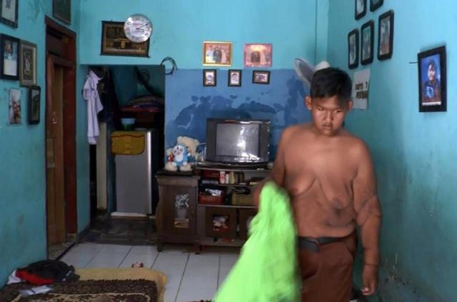 12-летний индонезийский подросток Арья Пермана похудел на 95 килограмм (9 фото)